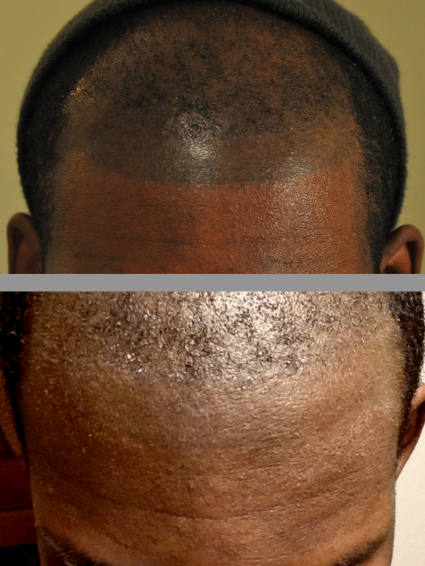 Gallery beloved tattoo removal for Hairline tattoo cost
