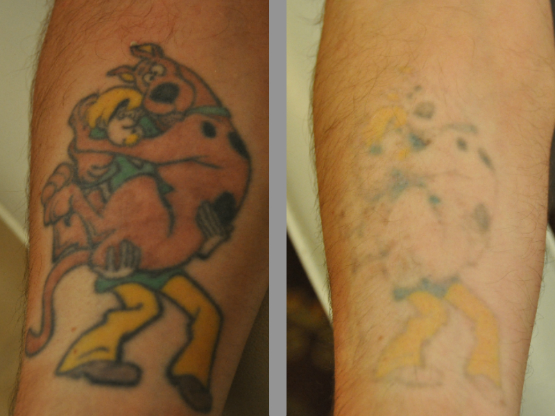 Laser Tattoo Removal ~ Beloved Tattoo Removal